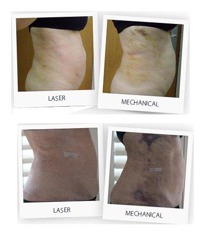 BeautiFill VS Liposuzione meccanica